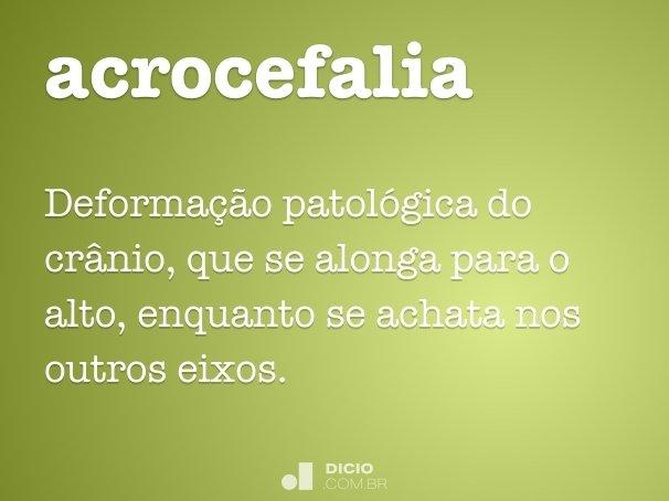 acrocefalia