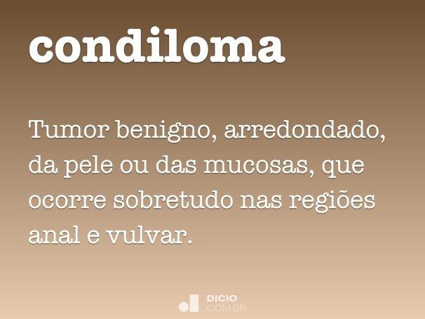 condiloma